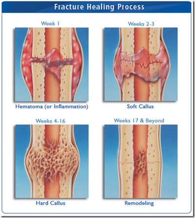 Let's not broken thumb heal shoulders